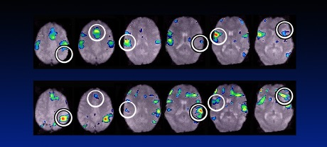 Change in brain from trauma before and after treatment